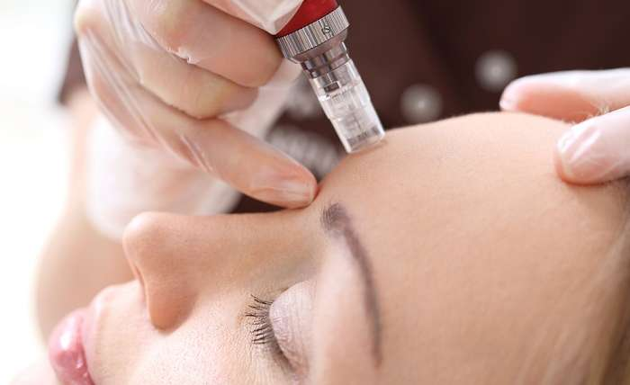 Best Microneedling in Northern Virginia