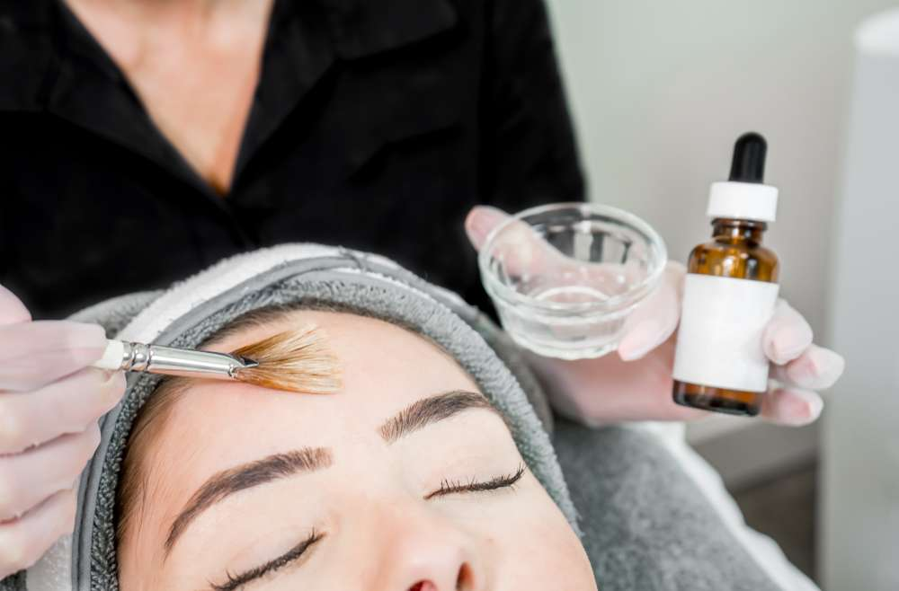 Which Chemical Peel Is Right for Me?