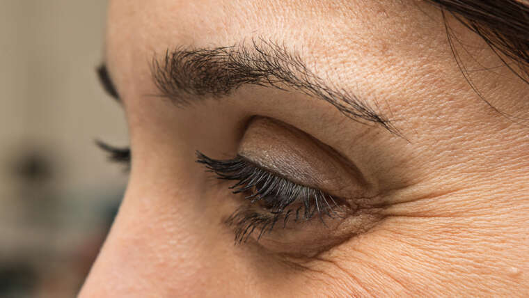 How Long Does Botox Last For Crow's Feet?