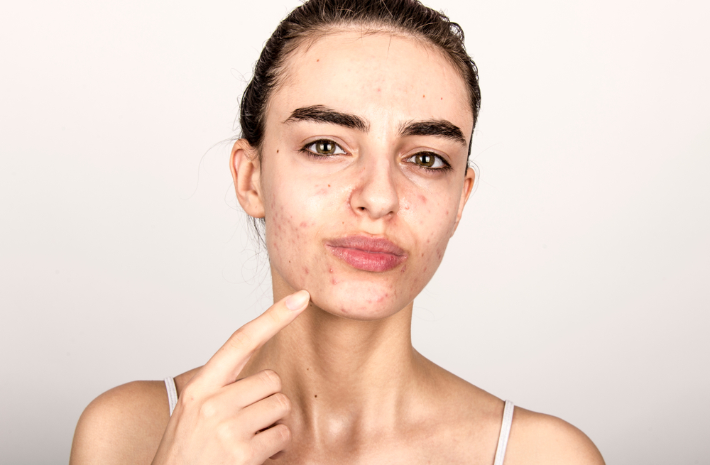 How to Find the Best Acne Doctor in Tysons Corner to Eliminate Breakouts